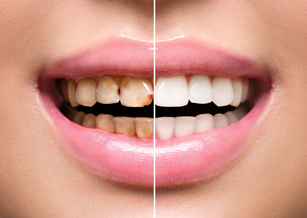 Bleaching Teeth Whitening Globehealer