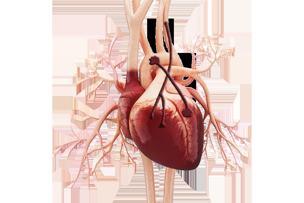 coronary-artery-bypass_01