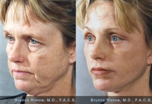 Face_Lift_01_Dr._Ristow