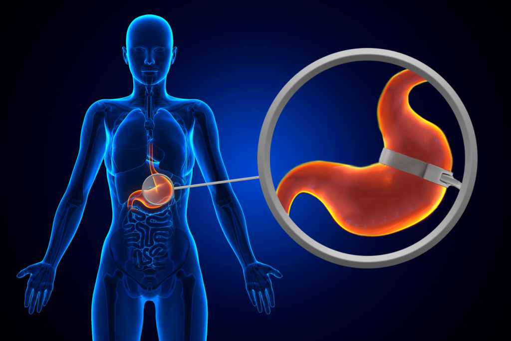 gastric-surgery