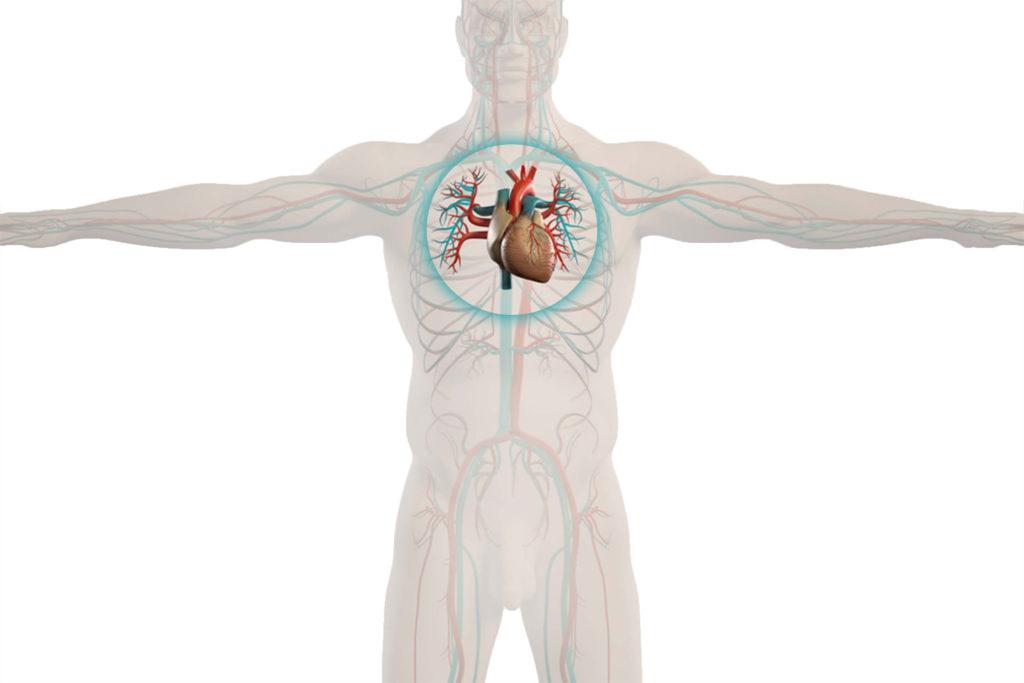 cardiacsurgery